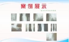 中医院案例展示图片